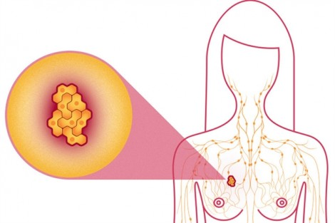 Bốc hỏa làm tăng rủi ro ung thư vú?