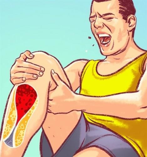 7 dấu hiệu nguy hiểm của tắc nghẽn động mạch mà chúng ta hay bỏ qua