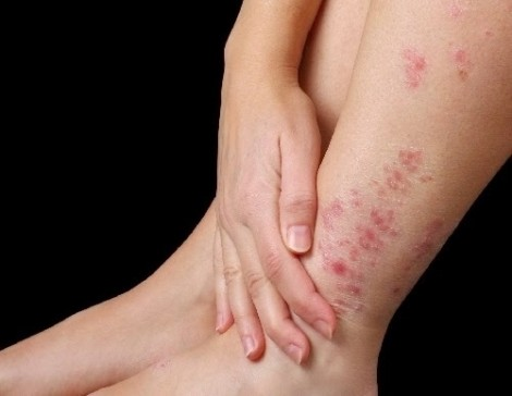 Ngứa dưới da có nguy hiểm không?