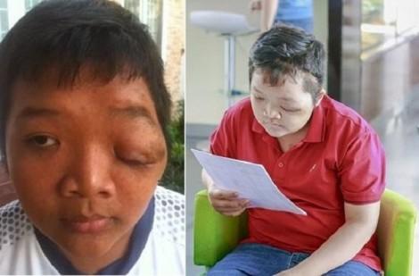 Chuyên gia thần kinh McKay McKinnon phẫu thuật cho trẻ bị u sợi thần kinh