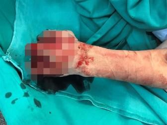 Vừa sạc pin vừa dùng điện thoại, bé trai bị nổ cụt bàn tay