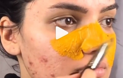 Mặt nạ cho da mụn từ nghệ, mật ong, chanh tươi, yaourt