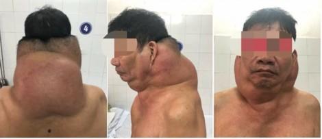 Bệnh nhân ở Hải Phòng 'biến thành người gấu' vì mắc bệnh Madelung