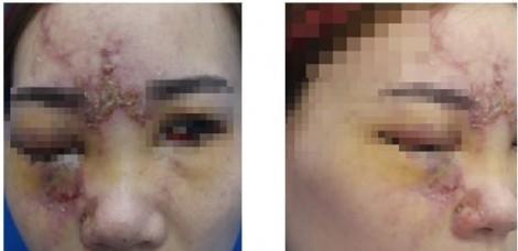 Một phụ nữ có cơ bị mù mắt sau khi qua Đài Loan nâng mũi