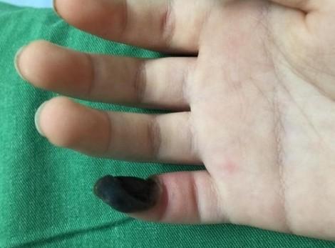 Bé gái hoại tử ngón tay vì mua thuốc trên mạng chữa mụn cóc