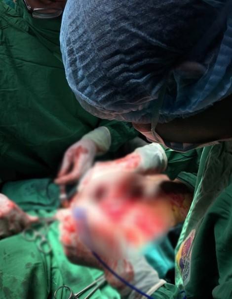 Ca mổ xuyên đêm để vá tim cho nữ bệnh nhân