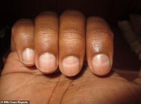 Vì sao leo núi thiếu oxy, móng tay trở thành màu trắng?