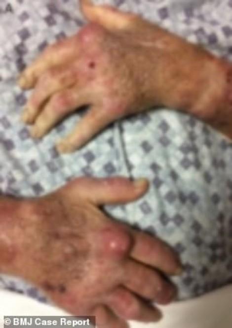 Người đàn ông bị nhiễm khuẩn nặng sau khi rửa bể cá cảnh