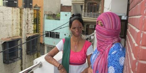 Người mẫu Ấn Độ kể chuyện bị tạt axit