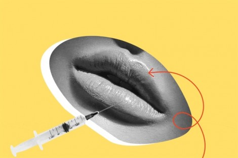 20 kiến thức nhất định phải biết trước khi quyết định tiêm môi
