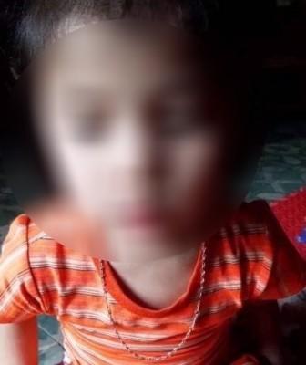 Xác minh vụ bé gái 5 tuổi bị cô giáo bôi chất bẩn vào vùng kín