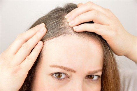 Xóa tan nỗi lo tóc bạc với vỏ khoai tây