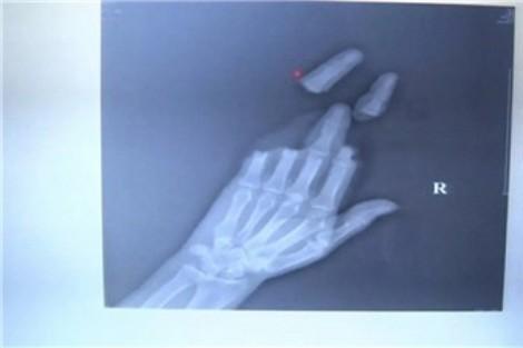Hai người đàn ông đứt lìa ngón tay, bàn tay trong lúc thả diều