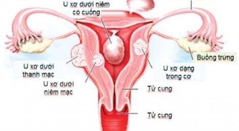 Rối loạn kinh nguyệt kéo dài hơn một năm khiến người phụ nữ bị cắt bỏ tử cung