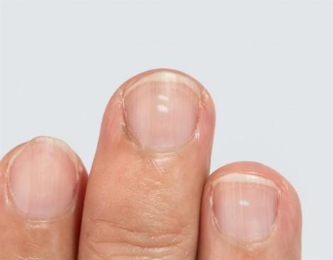 Đốm trắng ở móng tay, nguyên nhân và cách phòng ngừa