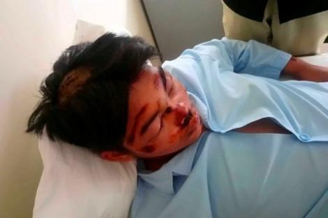 Bị rượt chém hội đồng, nam sinh lớp 11 phải nhập viện cấp cứu