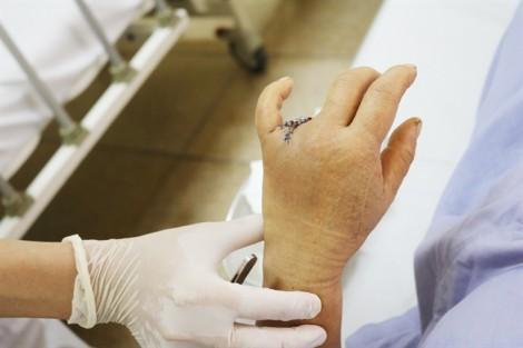 Cụt một ngón tay do… đeo nhẫn