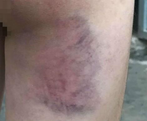 Nữ sinh lớp 4 bị cô giáo đánh bầm mông vì không làm được bài tập