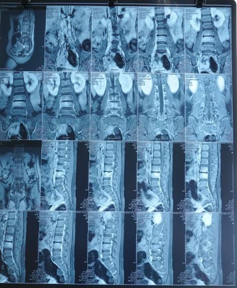 Cứu chữa thành công ca bệnh đau vùng thắt lưng cho bé gái 9 tuổi