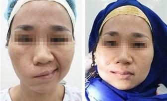 Cơ đùi giúp thay đổi cuộc sống người méo miệng