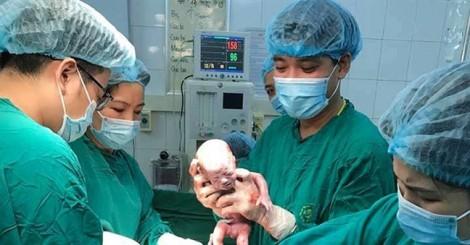 Sản phụ Việt Nam sinh 3 bé trai cùng trứng, thế giới mới có một trường hợp