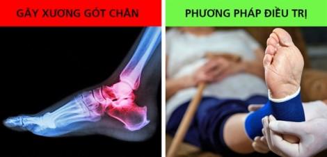 9 cách giảm đau gót chân