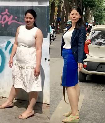 Cắt bớt dạ dày để giảm béo cho cô gái có phủ tạng đảo ngược