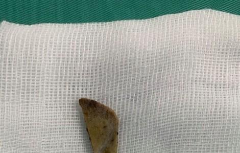 Nuốt mảnh xương vào bụng, người phụ nữ suýt chết khi ăn bún sườn