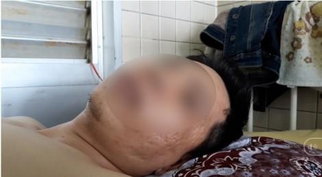 Bệnh viện Chợ Rẫy xác nhận nhầm lẫn khoan cẳng chân cho bệnh nhân gãy đốt sống ngực