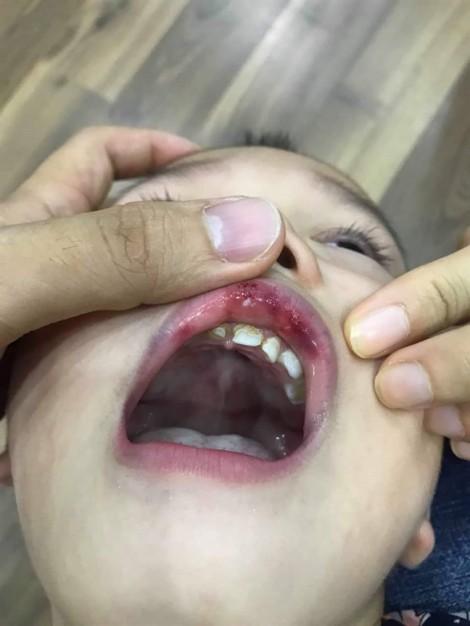Cô giáo trường mầm non cao cấp tát học sinh 3 tuổi tụ máu môi, bầm mặt