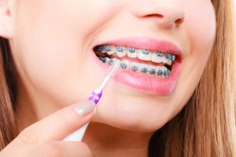 11 điều cần biết trước khi đi niềng răng