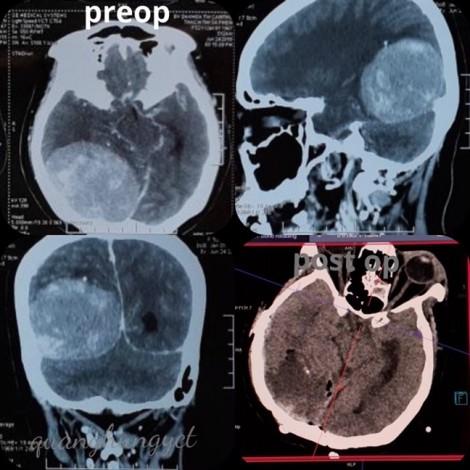 Đau đầu kéo dài, một phụ nữ ở Vĩnh Long không ngờ bị u màng não khổng lồ