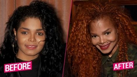 Mặt ngày càng biến dạng, em gái Michael Jackson có nối gót anh trai?