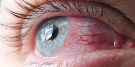 3 bệnh mắt dễ bị nhất trong mùa hè