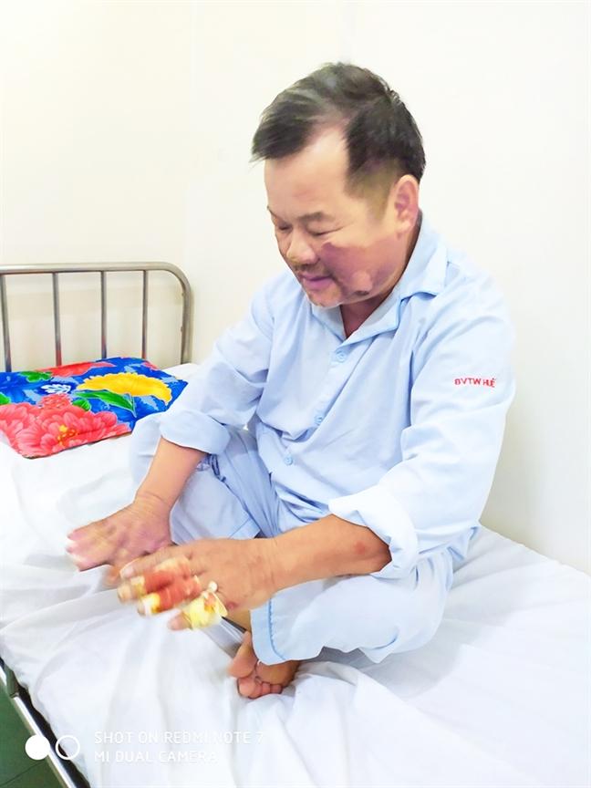 Chong chay rung kieu 'tay khong bat giac'
