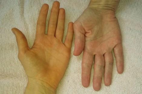 Nổi mẩn vàng trên da tay, chân là bệnh gì?