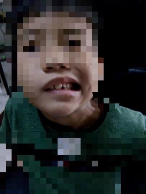 Bé trai 8 tuổi lệch mặt, méo miệng sau một đêm vì sai lầm dễ gặp của cha mẹ