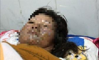 Một phụ nữ bị chồng tẩm xăng đốt, gây bỏng từ mặt xuống đùi