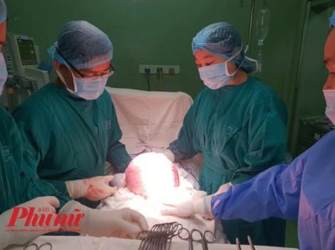 Tưởng mập bụng sau mãn kinh nào ngờ mang khối u 4,5kg