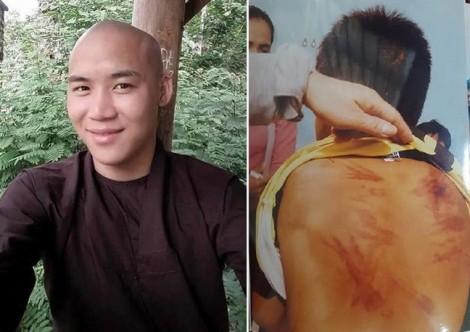Bé trai bị người tu tại gia bạo hành phải điều trị về thần kinh