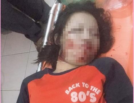 Trích xuất camera tìm chiếc xe tải làm sà dây điện khiến thiếu nữ 17 tuổi chết tức tưởi