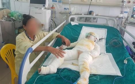 3 trẻ mầm non bị bỏng do cô giáo dạy phòng chống cháy nổ hiện ra sao?