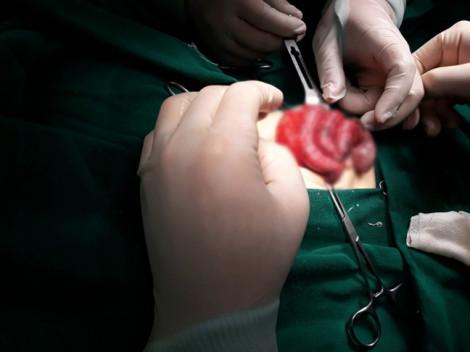 Bé gái sơ sinh mới 6 ngày tuổi phải cắt bỏ buồng trứng do tắc ruột