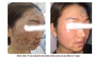 Dùng bột rửa mặt mua qua mạng, da mặt thiếu nữ biến dạng, xù xì như vỏ cây