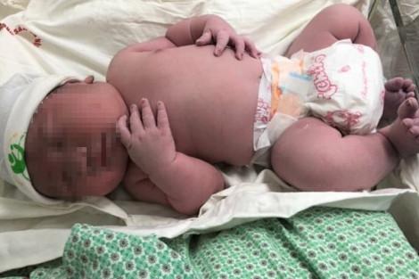 Bé trai ở Hà Nội chào đời nặng đến 5,2kg, tương đương trẻ 3 tháng tuổi