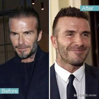 David Beckham, Ben Affleck… than trời vì hói đầu