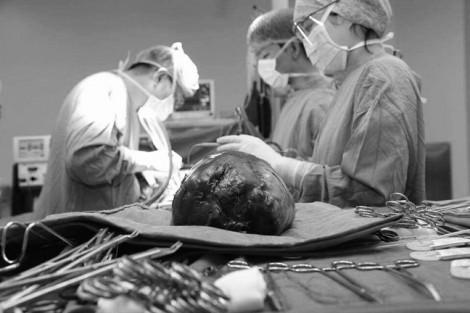 Người đàn ông mang khối u gan khủng với kích thước 30cm