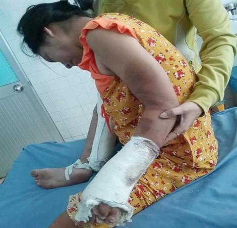 Thai phụ bị chồng hờ đánh đập dã man phải nhập viện cấp cứu nhiều lần