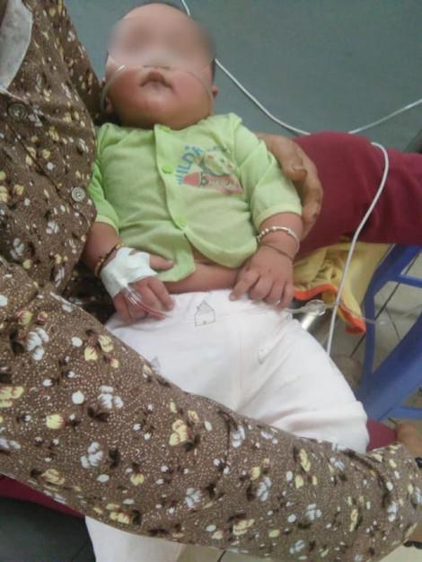 Bé 8 tháng tuổi suýt chết sau khi uống thuốc chữa ho, sổ mũi ở tiệm thuốc Tây