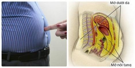 Tích lũy mỡ nội tạng làm tăng nguy cơ tiểu đường type 2 ở phụ nữ